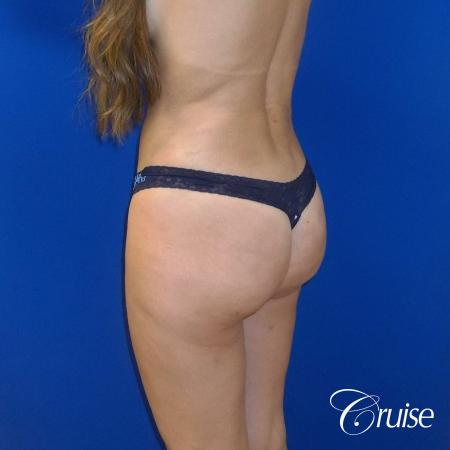 Liposuction -  After Image 5