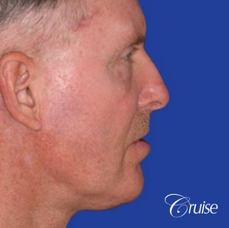 62 year old with chin implant and neck lift -  After Image 3