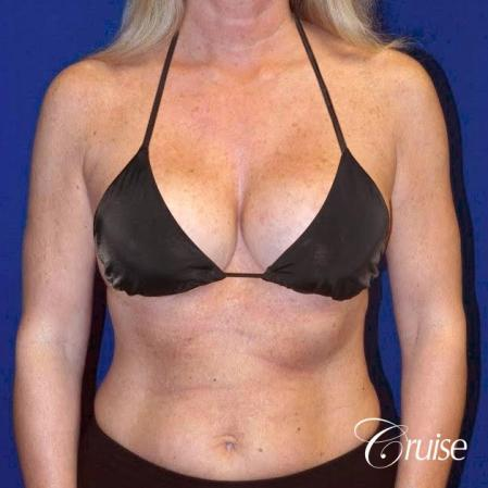 Breast Lift - Saline Augmentation - After Image 4