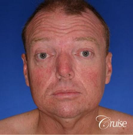 best male chin implant with large square jaw - Before Image 1