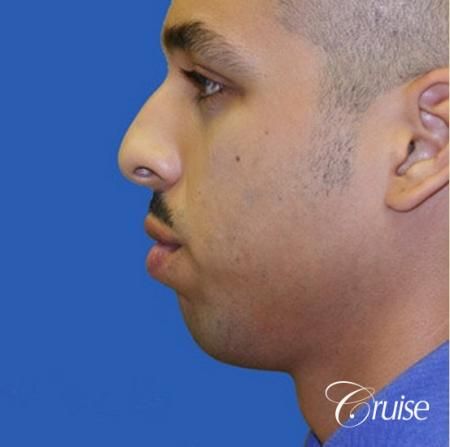 male patient with best pictures of chin implant - Before Image 2