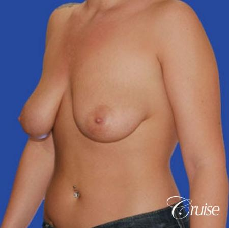 best photos of 20 yr old with saline breast reduction surgery - Before Image 3