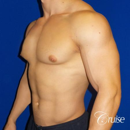 Body Builder Gynecomastia -Areola Incision - Before Image 2