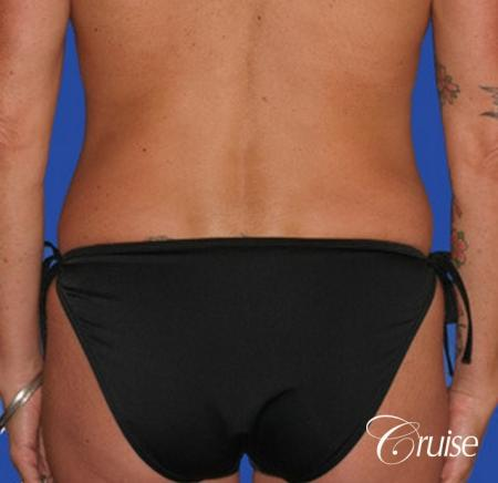 best female liposuction for small waist Newport Beach -  After Image 1