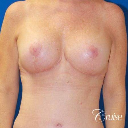 best breast lift revision with saline 270cc -  After Image 1
