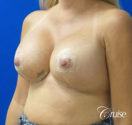 Breast Lift And Augmentation: Patient 6 - After Image 2