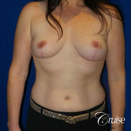 Breast Reduction No Implants - After Image