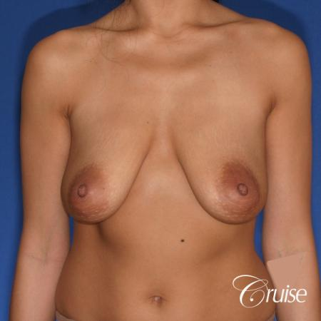 best breast lift anchor with silicone augmentation in Orange County - Before Image 1