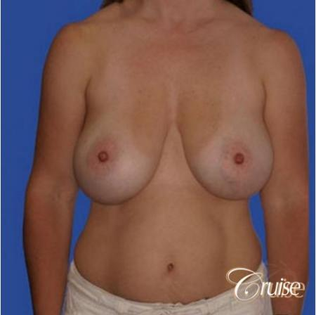 best breast revision tummy tuck mommy make over - Before Image 1