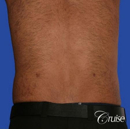 best liposuction abdomen and flanks on a male patient -  After Image 2