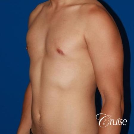 young athletic adult with puffy nipple -  After Image 2