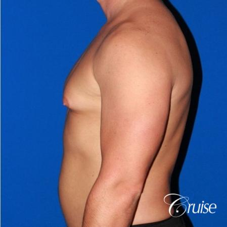 body builder with Gynecomastia puffy nipple - Before Image 2