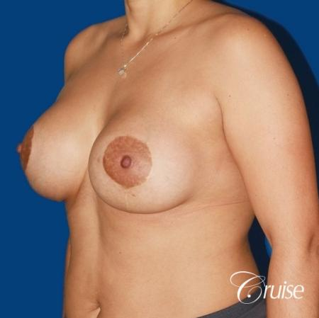 best before and after photos of young breast lift anchor scars -  After Image 3