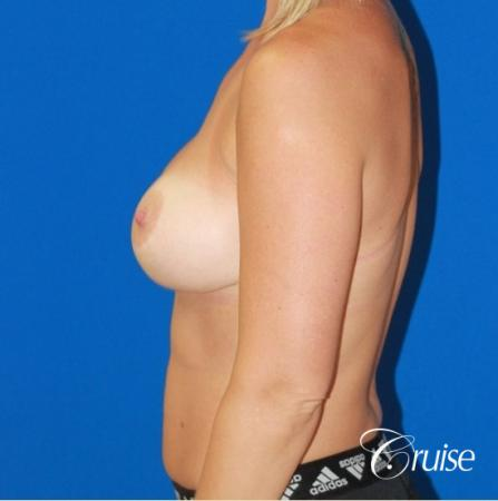 best before and after of breast lift anchor with high profile saline augmentation -  After Image 2