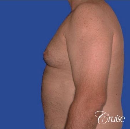 chest liposuction on adult - Before Image 2