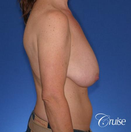 best breast reduction surgery with saline implants - Before Image 3