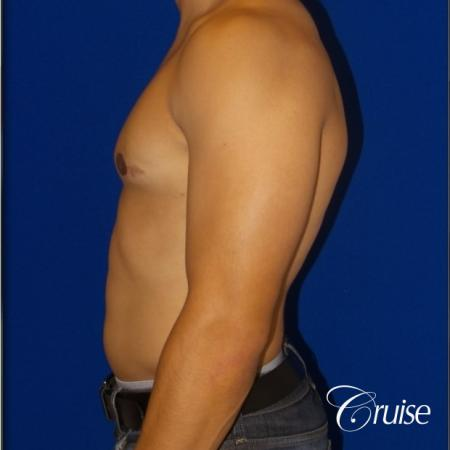 gynecomastia photos of an adult with overdeveloped breast -  After Image 3