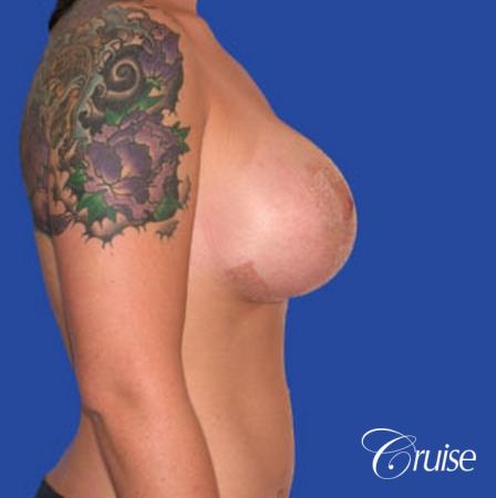 best photos of 20 yr old with saline breast reduction surgery -  After Image 4