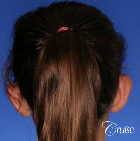 best otoplasty pictures on adolescent child teen - Before and After Image 3