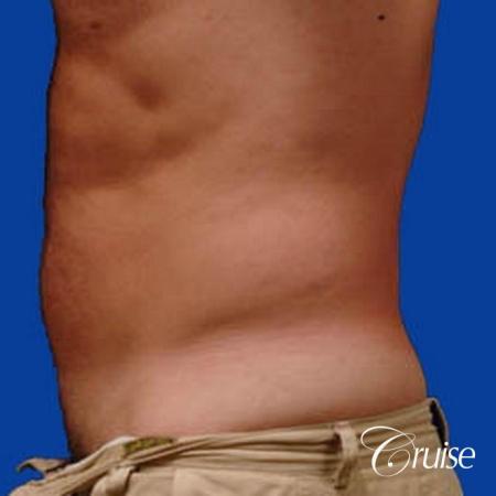 best male ab sculpting liposuction abdomen flanks - Before Image 2