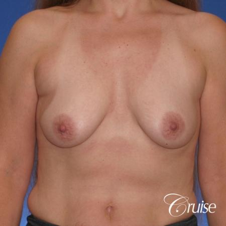 best breast lift donut scars in Newport Beach - Before Image 1