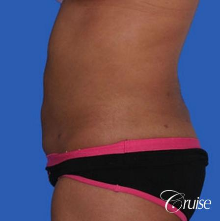 small waist with liposuction abdomen and flanks -  After Image 2