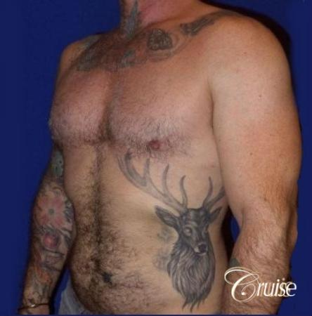 Moderate Gynecomastia -Areola Incision - After Image 4