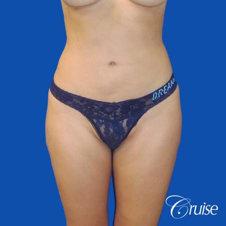 Liposuction -  After Image 1