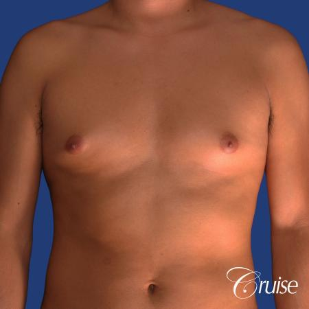 best gynecomastia results with plastic surgeon and specialist - Before Image 1