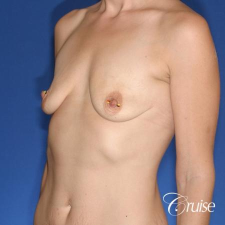 best results for breast lift lollipop with silicone implants - Before Image 3