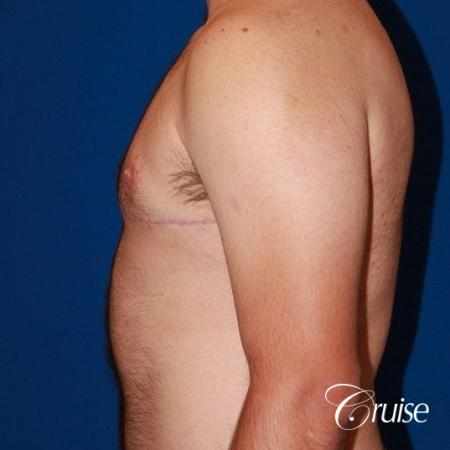 20 with Gynecomastia and puffy nipple -  After Image 2