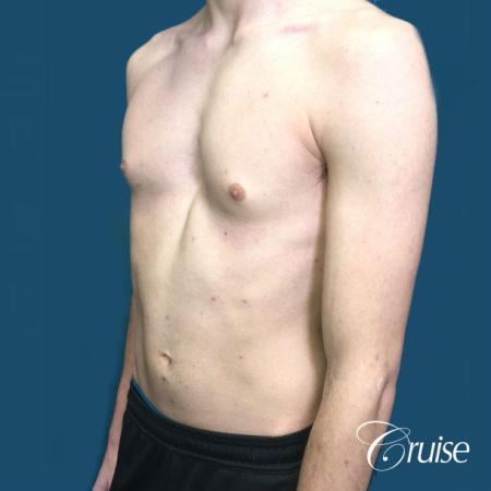 Top Gynecomastia Specialist Dr. Cruise - Before Image 3