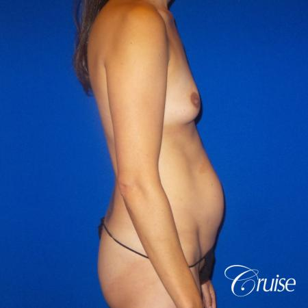 Best Tummy Tuck before and afters Dr. Cruise - Before Image 4