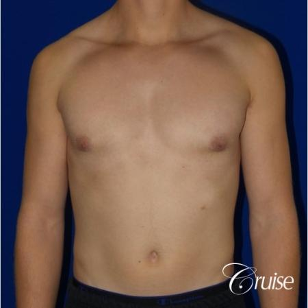 Teenage Gynecomastia -Areola Incision - After Image 1