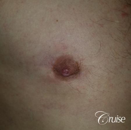 Medical Tattooing: Patient 7 - After