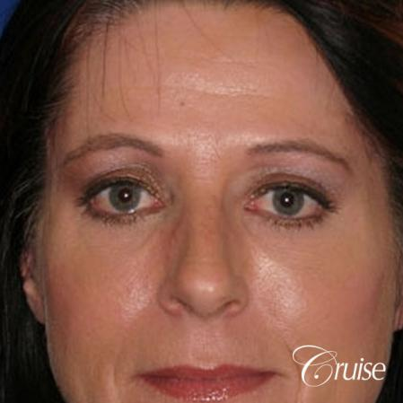 best temple lift facial rejuvenation to brighten eyes - After Image