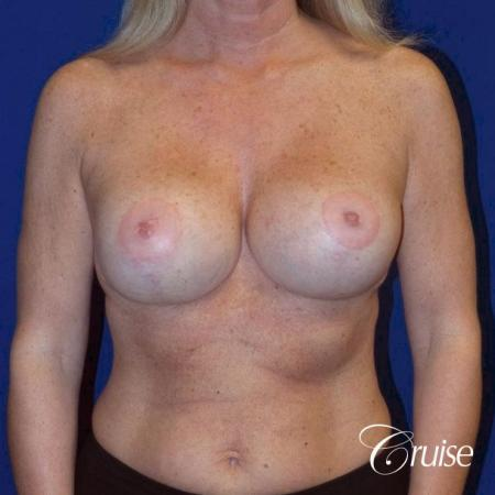 best breast lift with implants -  After Image 1