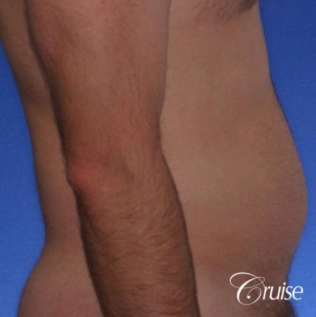 male muffin top liposuction pictures - Before and After Image 2
