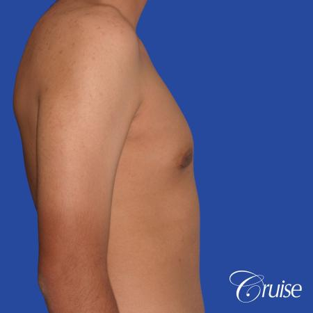 gynecomastia patient gets nipple reduction for best results -  After Image 4