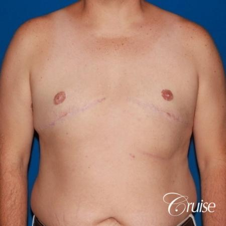 male breast severe gynecomastia free nipple graft anchor -  After Image 1