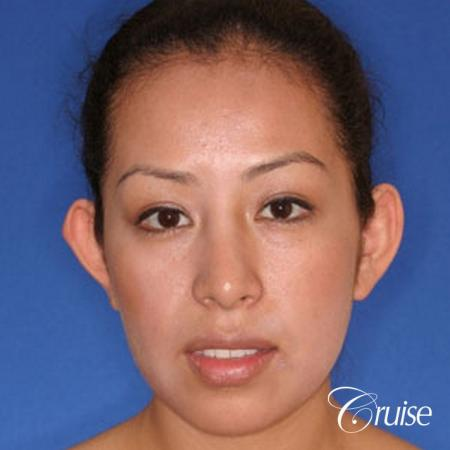 plastic surgeon does otoplasty in Newport beach - Before Image 1