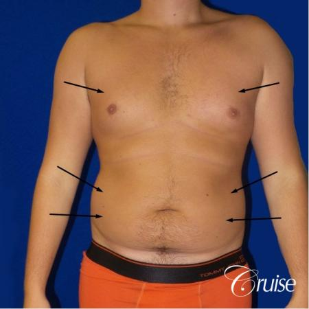 Best  before and after lipo photos of guys - Before