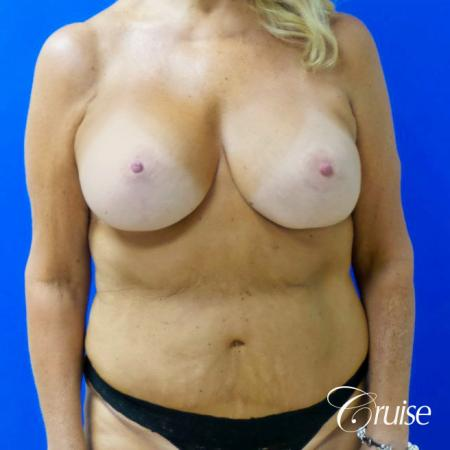 Breast Lift Anchor W/ Silicone Implants On Mature Woman - After Image 1