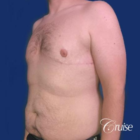 Pedicle incision Dr. Cruise Newport Beach CA -  After Image 3