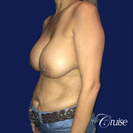 Best Breast reduction results and recovery - Before Image 3
