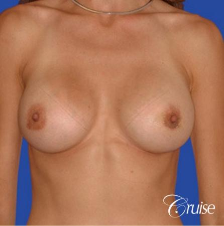 best pictures of breast implant rupture saline -  After Image 1