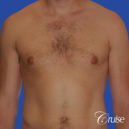 young adult with puffy nipple gets the best results with top gynecomastia surgeon -  After Image 1