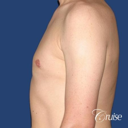moderate gynecomastia on adult donut lift -  After Image 2