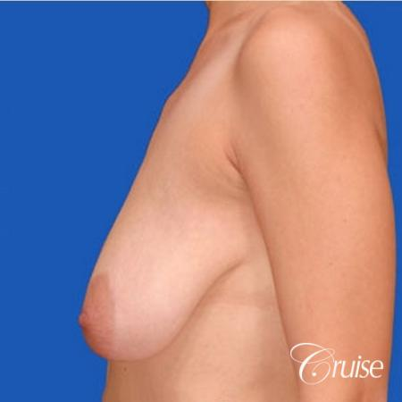 best results for breast lift anchor with top plastic surgeon - Before and After Image 2