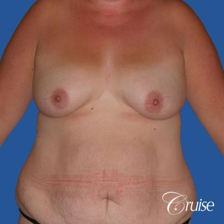 best mommy makeover and breast lift anchor results - Before Image 1